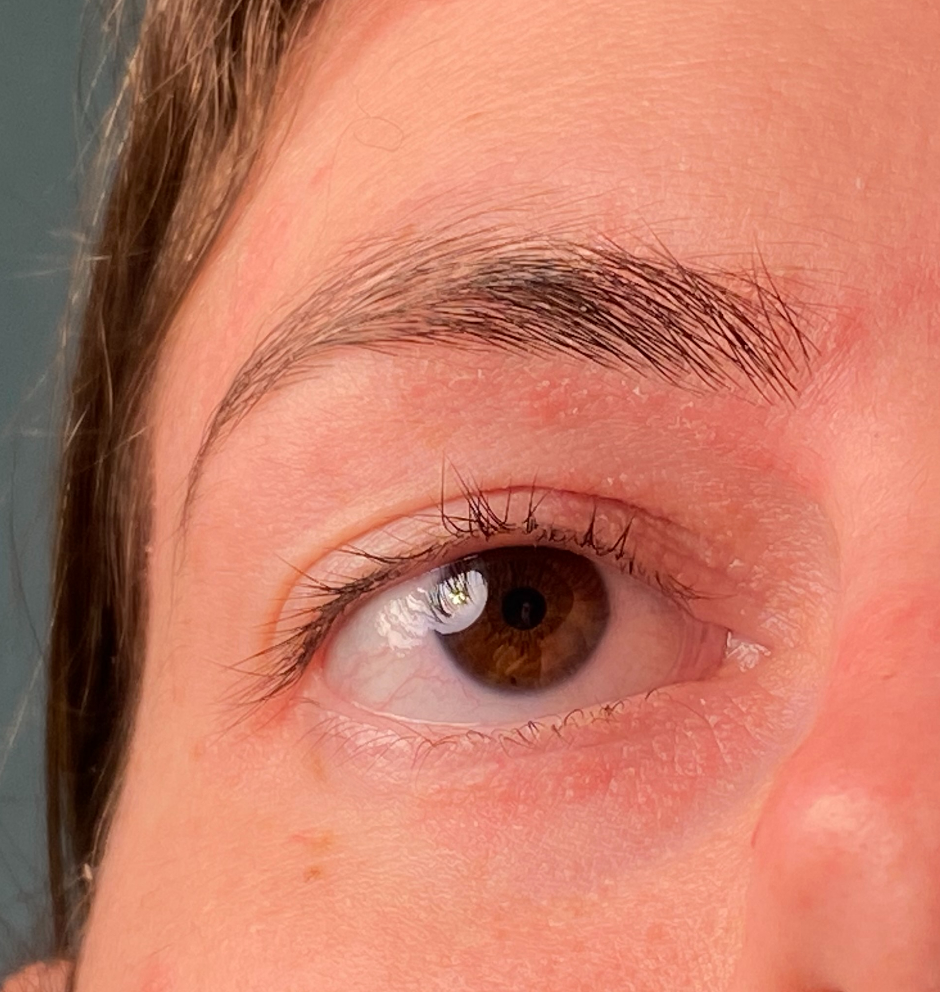A person's brown eye and eyebrow with irritated skin