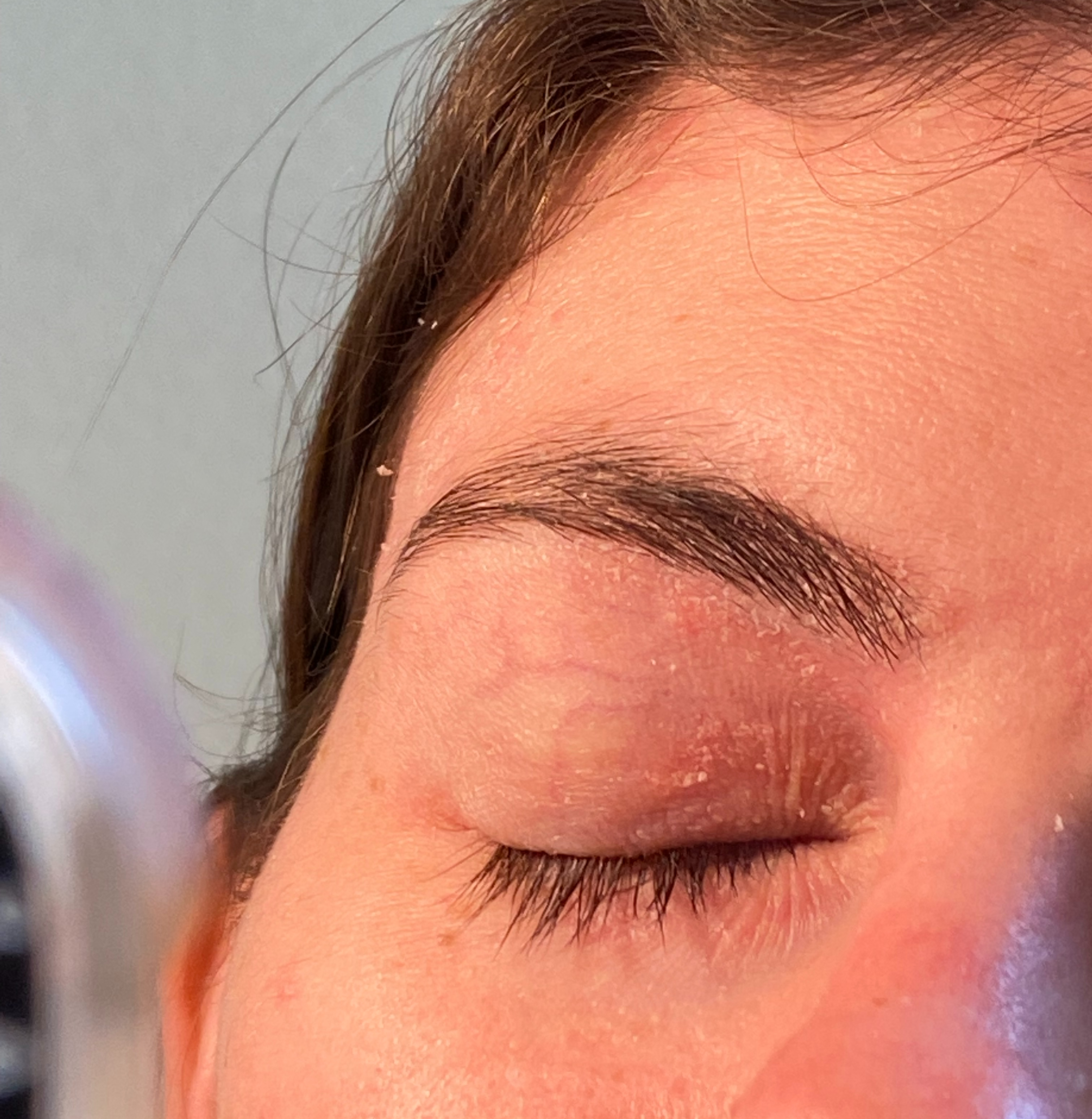 A person's closed eye with red psoriasis on the eyelid